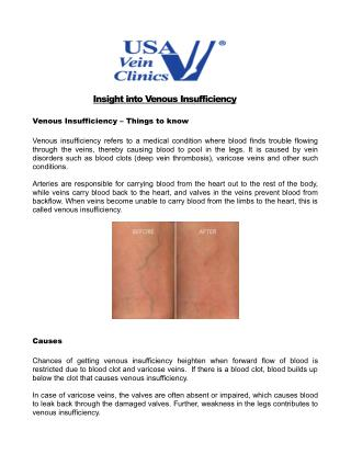 Insight into Venous Insufficiency - USA Vein Clinics
