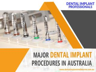 Major Dental Implant Procedures in Australia