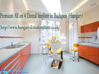 Premium All on 4 Dental Implant Budapest (Hungary)