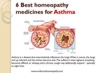 Best 6 homeopathy medicines for asthma