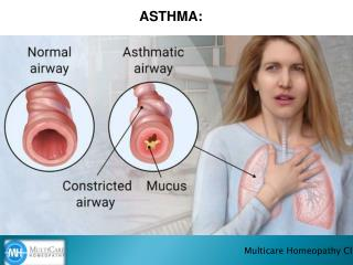 Best homeopathy for treating ASTHMA.