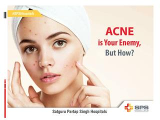 Acne is Your Enemy, But How?
