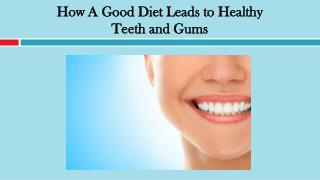How A Good Diet Leads to Healthy Teeth and Gums