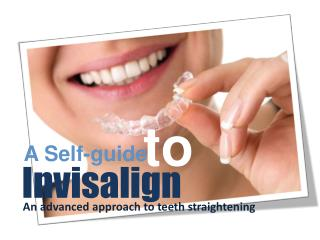 All About Invisalign Treatment - Invisalign London