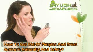 How To Get Rid Of Pimples And Treat Sunburn Naturally And Safely?