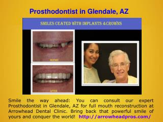 Dental Implant Specialist in Glendale, AZ