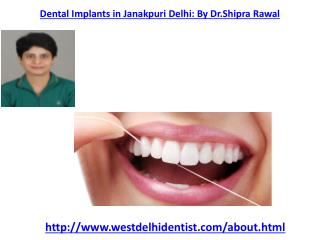 Dental Implants in West Delhi| Best dentist in West Delhi ,Dental Treatment in Vikaspuri