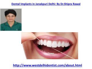 Dental Implants in West Delhi| Best dentist in West Delhi ,Dental Treatment in Vikaspuri