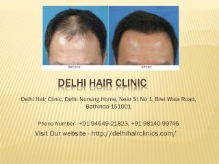 hair transplant clinic in punjab,Delhi