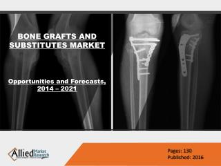 Global Bone Grafts And Substitutes Market Size 2022
