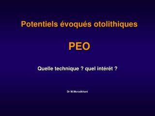 Potentiels  voqu s otolithiques  PEO