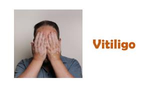 Everything you wanted to know about vitiligo