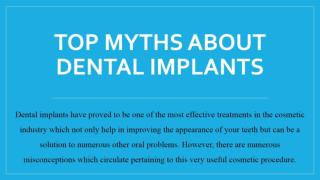 Top Myths About Dental Implants