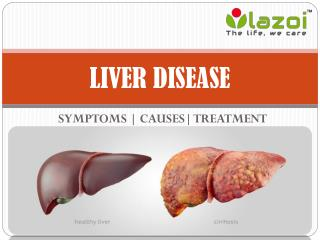 Liver Disease: Symptoms, causes, treatment, prevention and more