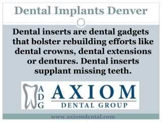 Dental Implants Denver