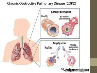 Chronic Obstructive Pulmonary Disease: A Comprehensive Case Study