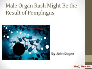 Male Organ Rash Might Be the Result of Pemphigus