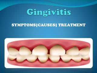 Gingivitis (Mild Gum Disease)