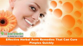 Effective Herbal Acne Remedies That Can Cure Pimples Quickly