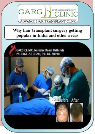 Why hair transplant surgery getting popular in India and other areas