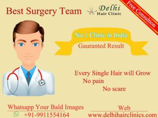 Best hair transplant clinic in Punjab,Delhi