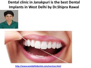Best dentist in West Delhi,Dental clinic in Janakpuri,Best dentist in Uttam Nagar|Rawal Dental Center