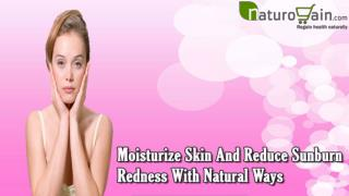 Moisturize Skin And Reduce Sunburn Redness With Natural Ways