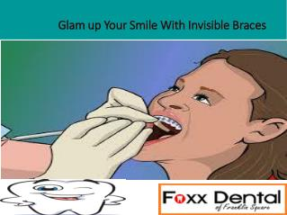 Glam up Your Smile With Invisible Braces