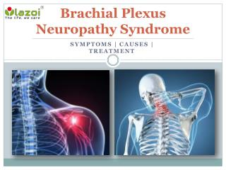 Brachial Plexus Neuropathy Syndrome : Causes, Symptoms, Daignosis and Treatment