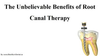 The Unbelievable Benefits of Root Canal Therapy