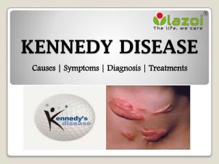 Kennedy disease: symptoms, causes, diagnosis and treatment.