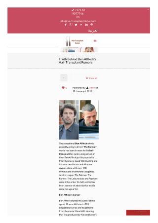 Truth Behind Ben Affleck's Hair Transplant Rumors