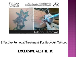 Effective Removal Treatment of body art tattoos