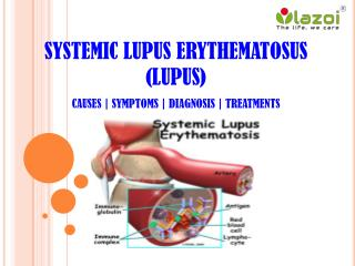 Systemic lupus erythematosus (lupus): Disease of the immune system