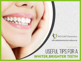 4 Tips for Bright & White Teeth
