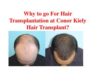 Why to go For Hair Transplantation at Conor Kiely Hair Transplant?