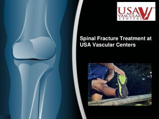 Spinal Fracture Treatment in California at USA Vascular Centers