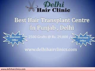 Change your look and Say good Bye baldness hair transplant in clinic Punjab