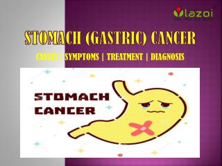 Stomach (Gastric) Cancer: Causes, symptoms, diagnosis, and treatment.
