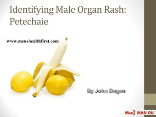 Identifying Male Organ Rash: Petechaie