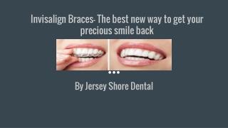 Invisalign Braces- The best new way to get your precious smile back