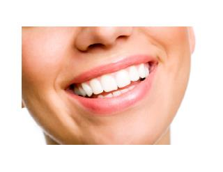 Natural Teeth Whitening, How To Get Teeth White, How To Naturally Whiten Your Teeth
