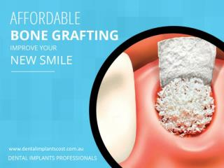 Affordable Bone Grafting- The Foundation of Your Beautiful Smile