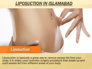Liposuction in Islamabad