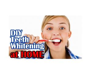 How To Whiten Teeth At Home, Home Remedies For Whitening Teeth, How To Have Whiter Teeth