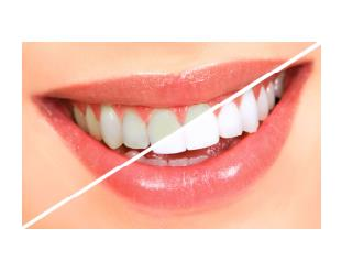 How To Make Your Teeth Whiter, Whiten Your Teeth At Home, Home Teeth Whitening Remedies