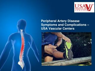 PAD Symptoms & Complications - USA Vascular Centers