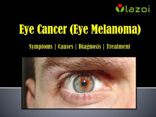 Eye Cancer (Eye Melanoma): Symptoms, Causes, Diagnosis and Treatment.