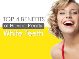Top 4 Benefits of Having Pearly, White Teeth