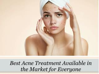 Best Acne Treatment Available in the Market for Everyone